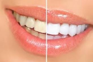 Clareamento dos dentes: conheça os mitos e verdades dessa técnica